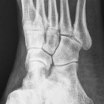 If youve injured your foot and your doctor suspects that a bone may be broken or fractured he or she may want to take xrays In addition to determining whether bones have been broken or fractured Xray images can also be used to detect arthritis osteoporosis dislocations or tumors