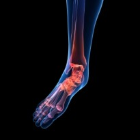 gout pain in foot causes natural home remedies for gout pain gout medication starts with a c